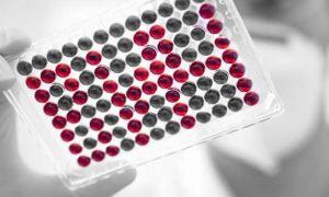 Анализ на ВИЧ методом ИФА: точность, достоверность
