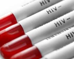 Если результат анализа на ВИЧ отрицательный: что это значит и может ли быть ошибка