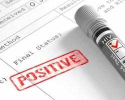 Если результат анализа на ВИЧ оказался положительный