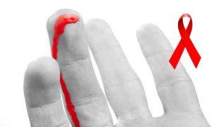 Алгоритм действий и помощь при аварийной ситуации ВИЧ
