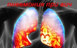 Заболевание пневмонией у ВИЧ инфицированных