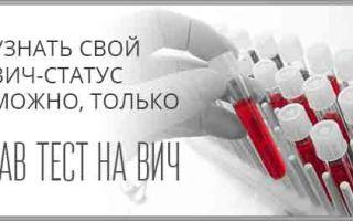 Когда сдавать и сколько времени готовятся анализы на ВИЧ