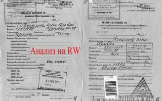 Анализы крови на реакцию Вассермана при ВИЧ