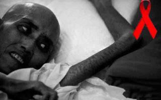 Можно ли умереть от вируса СПИДа