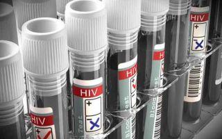 Показатели и расшифровка анализов на ВИЧ
