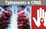 Особенности протекания ВИЧ ассоциированного туберкулеза