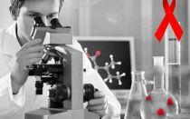 Анализ на ВИЧ с помощью метода ПЦР: когда сдавать, какая точность