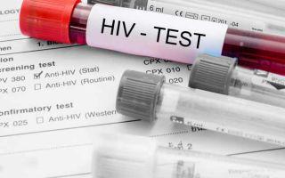 Срочный, достоверный Экспресс-анализ на ВИЧ