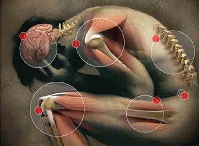 Боли в мышцах и суставах при вич лигаментоз локтевого сустава лечение