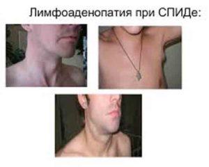 Симптомы лимфаденопатии