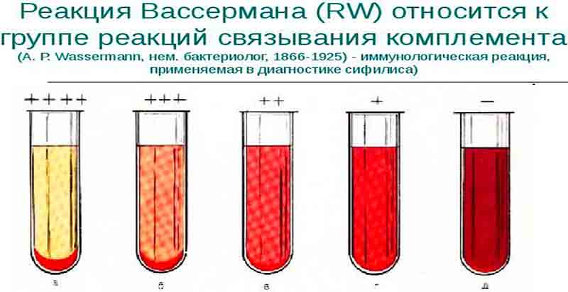 Анализ крови на р.вассермана Справка о надомном обучении Улица Щорса